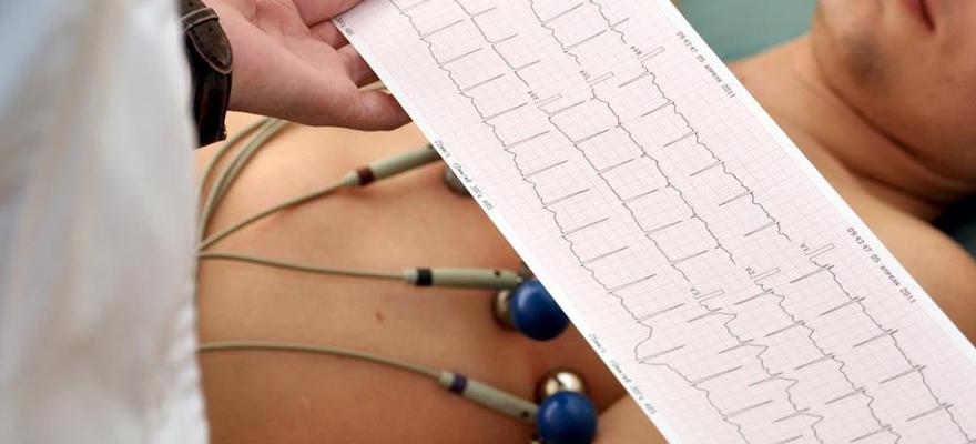 сделать экг сердца в рязани