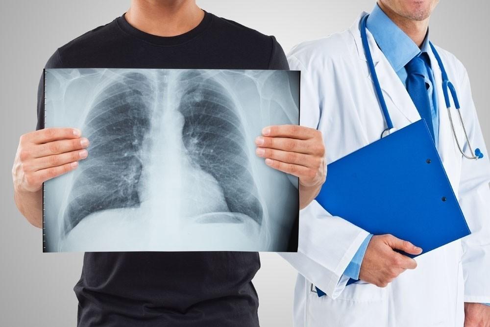 Флюрография в Добром Докторе